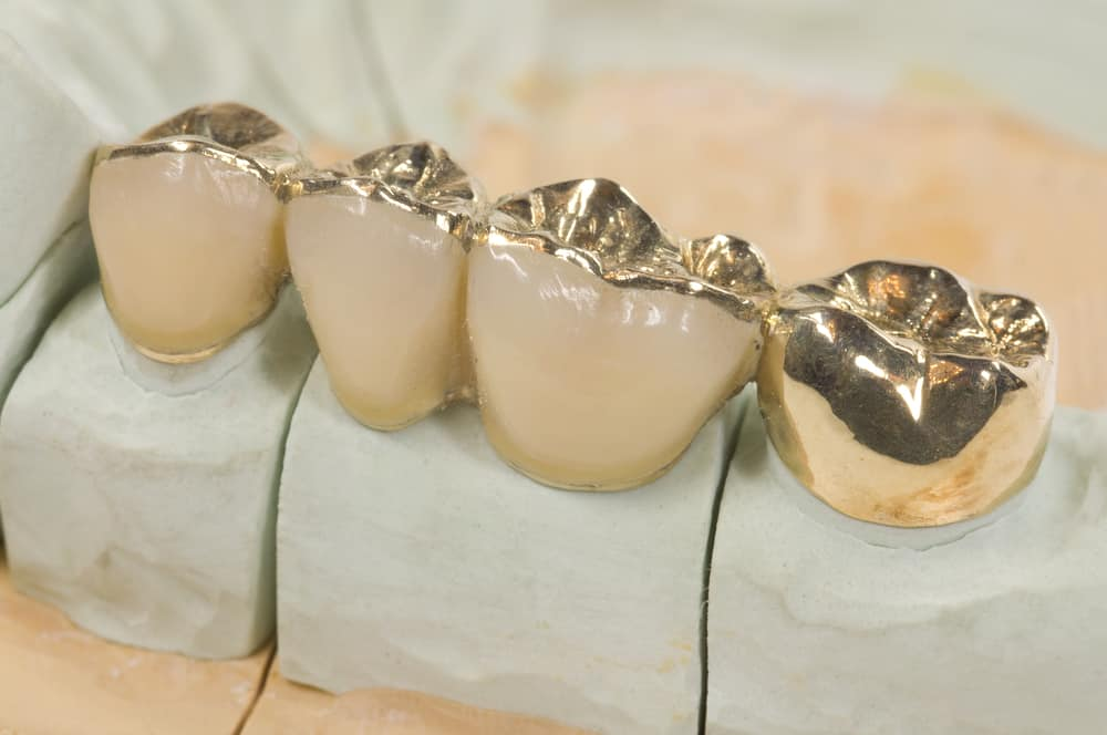 Does Insurance Cover Gold Teeth