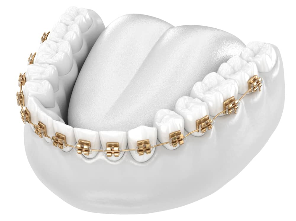 How Much Do Gold Braces Cost