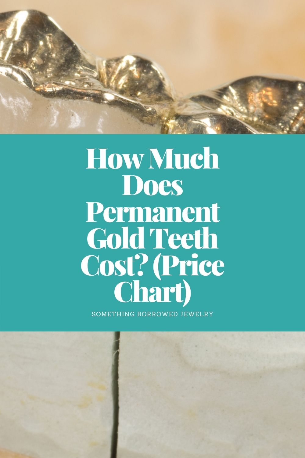 How Much Does Permanent Gold Teeth Cost (Price Chart) pin 2