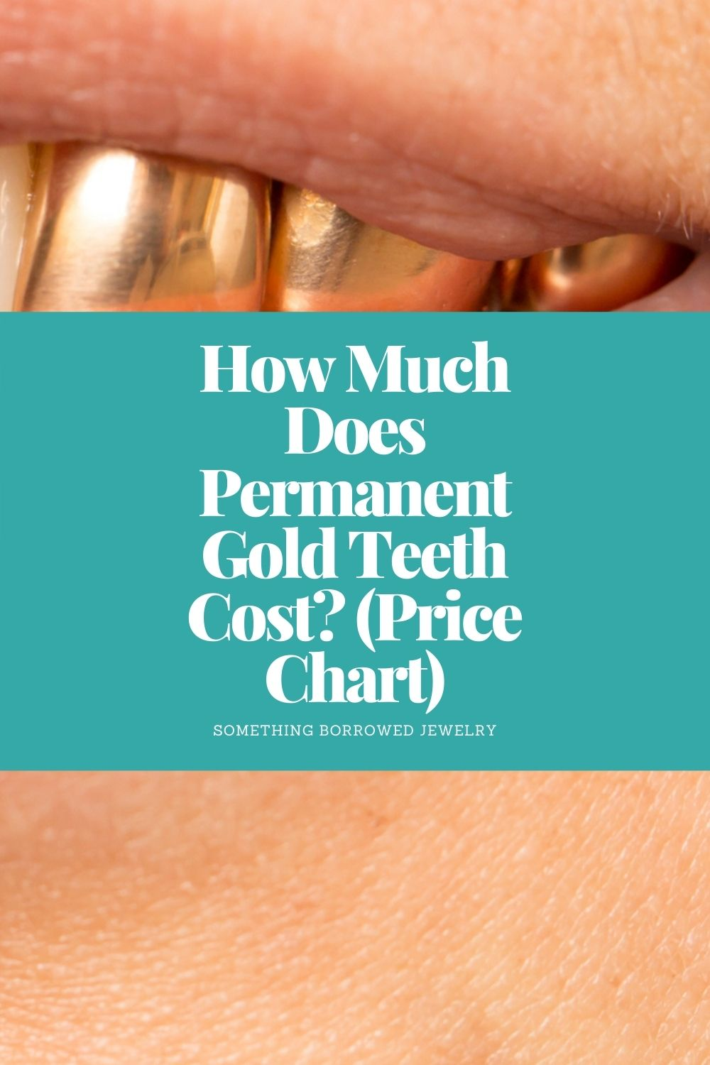 How Much Does Permanent Gold Teeth Cost (Price Chart) pin