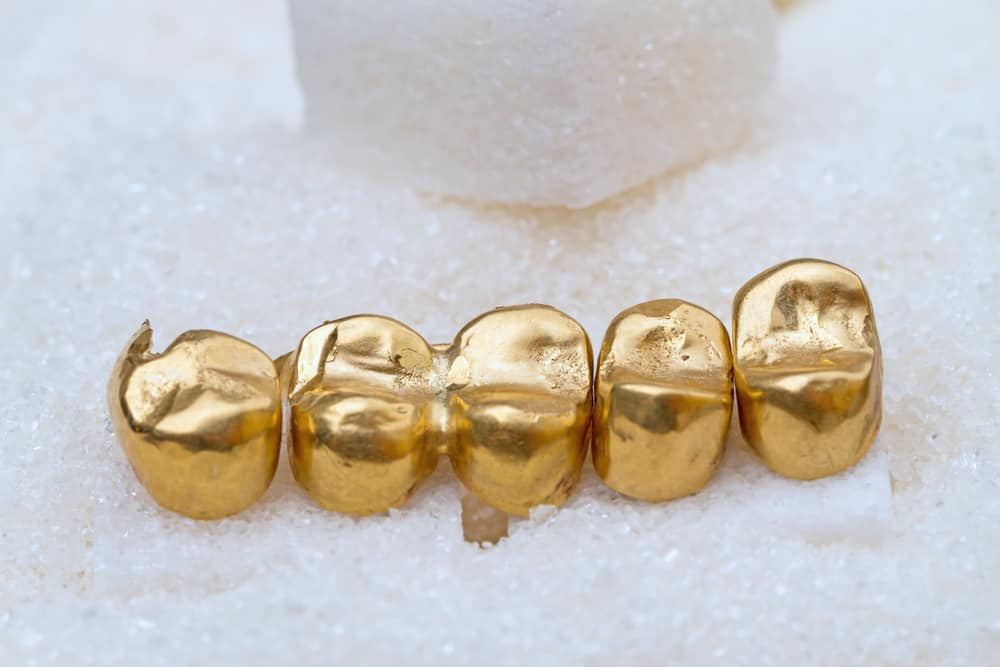 How to Avoid Fake Gold for Your Permanent Teeth