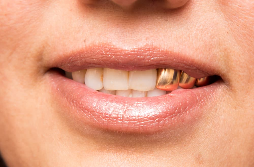 Which Type of Gold Teeth is Worth the Money