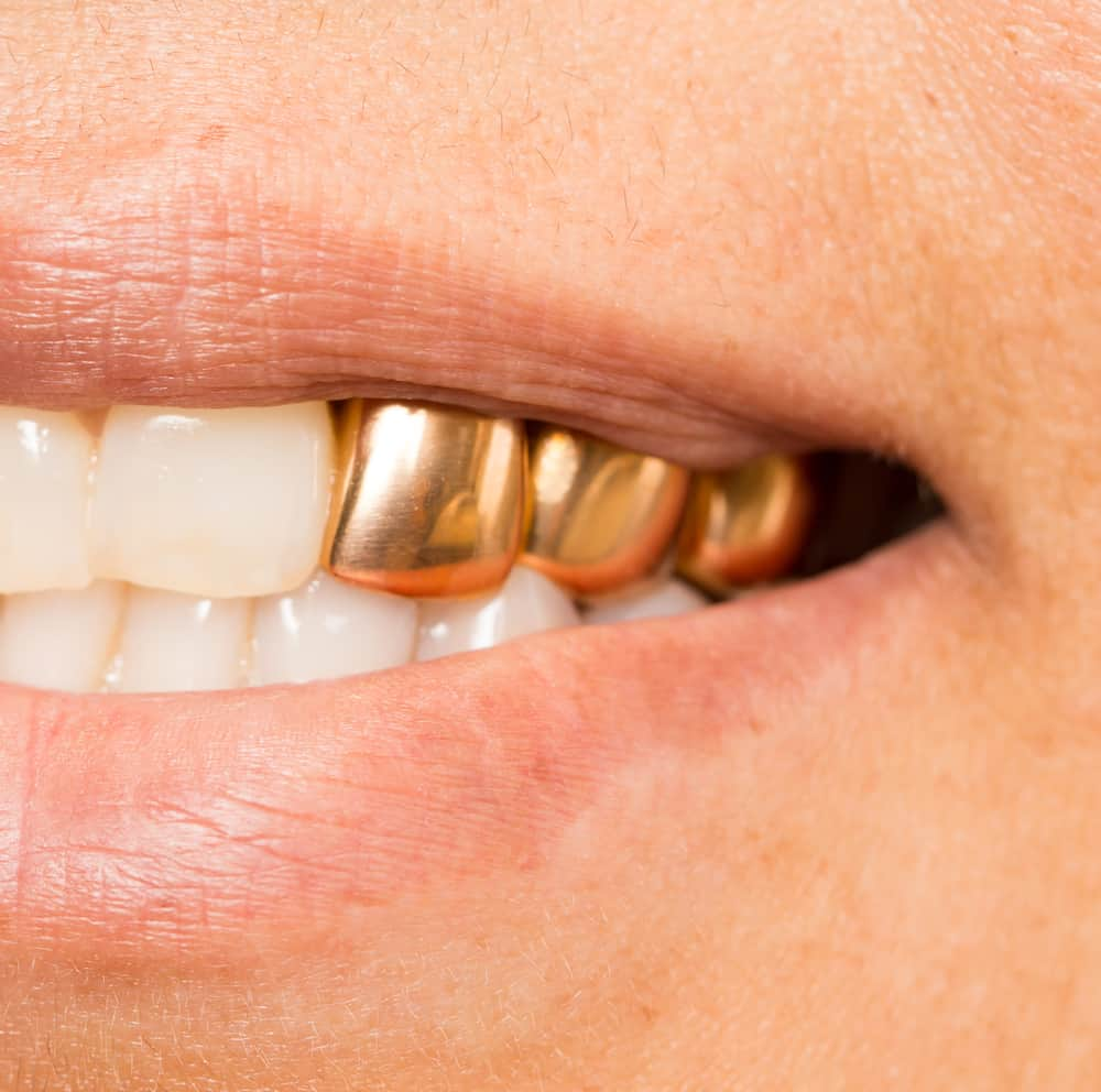 Why Permanent Gold Teeth Implants Are Good for You